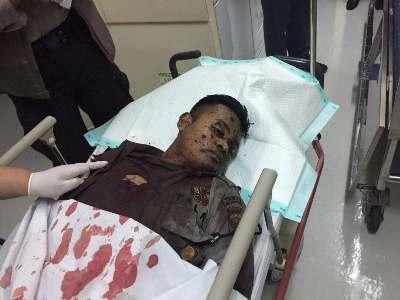Salah seorang korban bom bunu diri dari anggota Kepolisian mendapat perawatan intensif. FOTO : INT