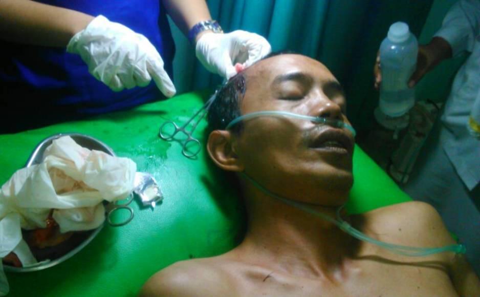 Wartawan ini mengalami luka setelah di hantamkan balok oleh tetangganya sendiri atas nama Ramlah. FOTO : ROBY SINAGA