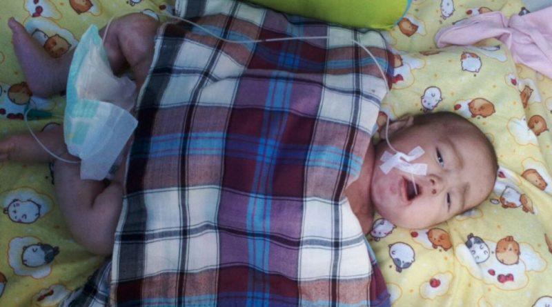 Konsumsi Susu Kaleng, Balita 4 Bulan Dirawat Intensif di RS Bahteramas