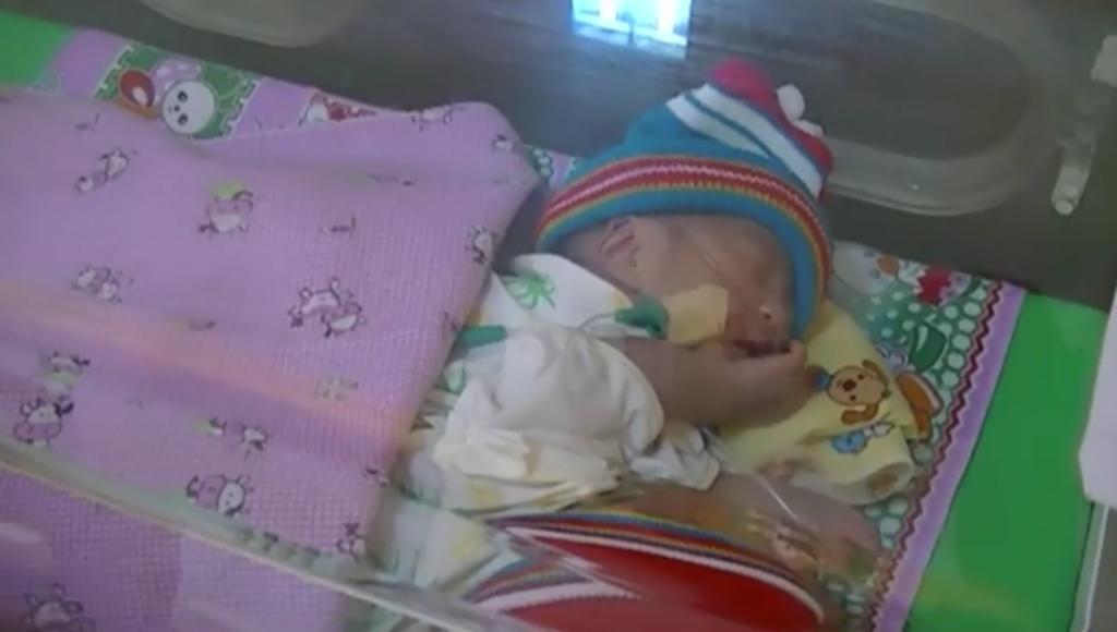 Bayi Kembar Siam Tak Punya Biaya Dirujuk ke RS Dr Soetomo Surabaya